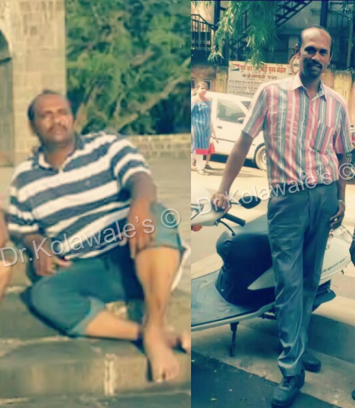 weight loss clinics in chennai